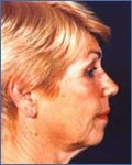 Facelift and Chin Augmentation - Before and After
