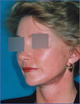 Facelift - Before and After