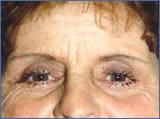 Anti-Wrinkle Treatment Before and After